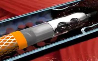 دستگاهی حیرت انگیز برای خروج لختههای خون از بدن + فیلم