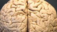 حشیش باعث بروز تغییراتی در ساختار مغز میشود