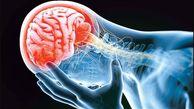 راهکارطلایی برای مهار خطرات سکته مغزی