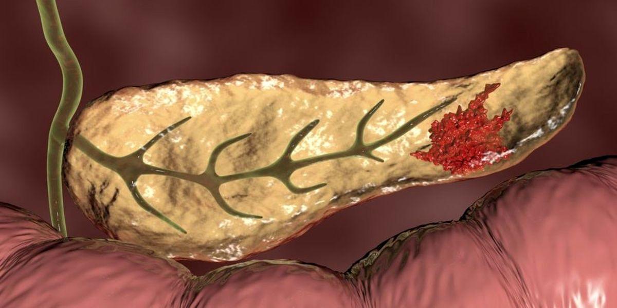 نشانه های سرطان پانکراس