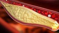 چربی خون در بدن چه علائمی دارد