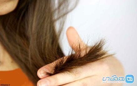 راهکارهایی اساسی برای رفع ریزش مو