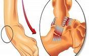 آیا مکررا دچار پیچ خوردگی مچ پا می شوید؟