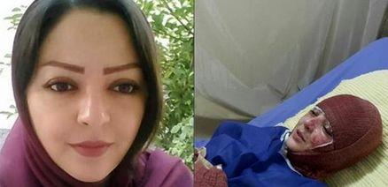 وضعیت دختر قربانی اسیدپاشی توسط همسرش + عکس