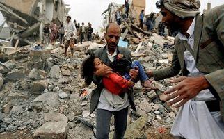 فجایع انسانی به دست سعودی ها در یمن زیر سایه خبری قتل جمال خاشقچی+فیلم