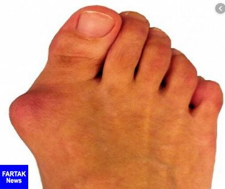 روش های جلوگیری از انحراف انگشت شست پا