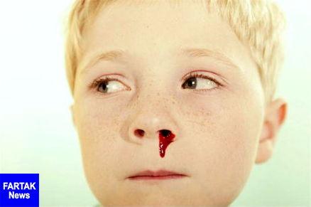 علل خوندماغ شدن و راههای درمان و پیشگیری