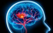 وقتی این علائم رادارید شاید خون به مغزتان نمی رسد+ پیشگیری