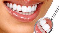 اشتباهاتی که باعث تغییر رنگ دندانها میشوند