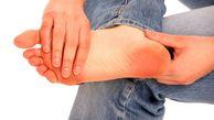 بیماری دردناک که به جان پاهایتان میافتد