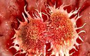 «سرطان تخمدان»؛ هزاران زن در معرض