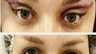 جراحی به اصطلاح زیبایی گوش الاغی و چشم گربهای! +فیلم