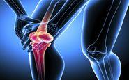 6 راهکار اساسی برای استحکام استخوان