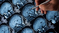 نابود کردن تومورهای مغزی با داروی اسکیزوفرنی