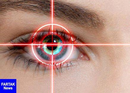 اگر اخیرا چشمهایتان را لیزیک کردهاید یا قصد آن را دارید، این گزارش را حتما بخوانید