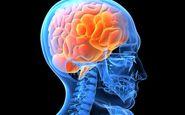 با عوامل خطر سکته مغزی آشنا شوید