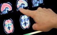 عوارض نورولوژیک کرونا