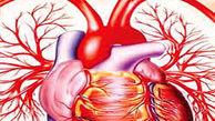 از علت تا درمان تنگ و سفت شدن رگهای خونی