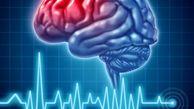 شایعترین علت سکته مغزی بشناسید