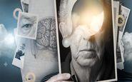 درمان 6 دقیقه ای آلزایمر و پارکینسون