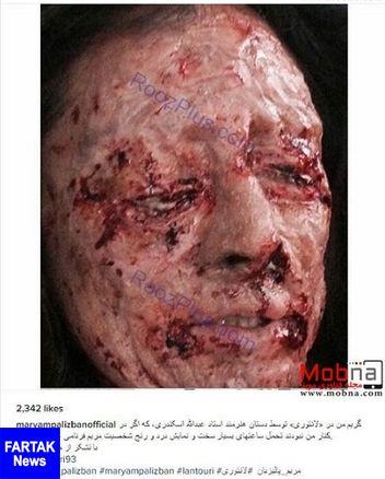 تصویری دلخراش از اسیدپاشی روی صورت خانم بازیگر!