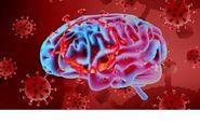 رابطه کرونا ویروس و بروز سکته مغزی