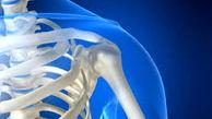 انواع پوکی استخوان و راههای درمان