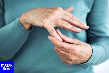 نشانه ای که از بیماری آرتروز خبر می دهد