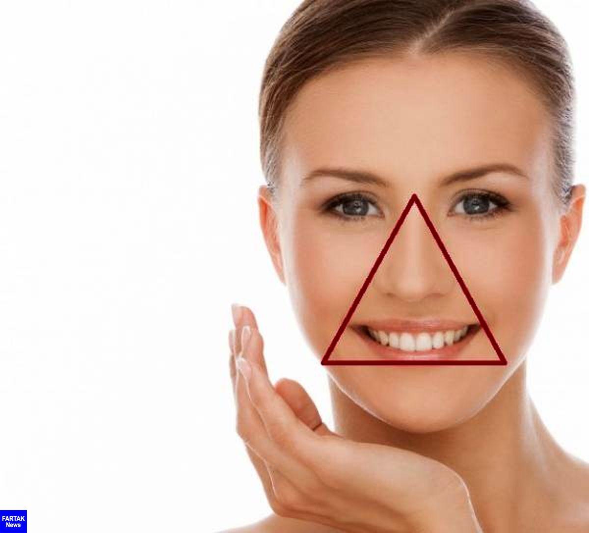 دستکاری جوش ها در مثلث خطر صورت ممنوع!