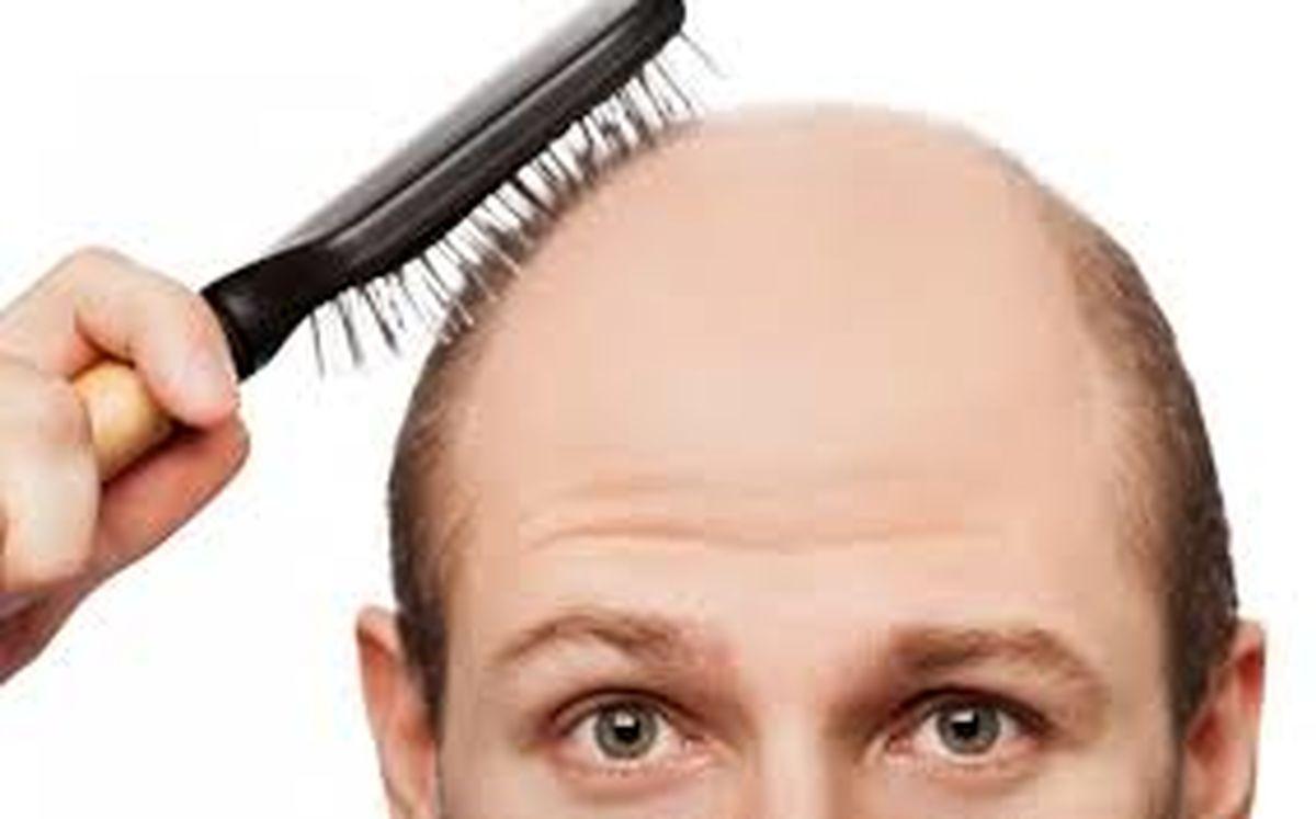 اصلی ترین علل ریزش مو و راه درمان آن