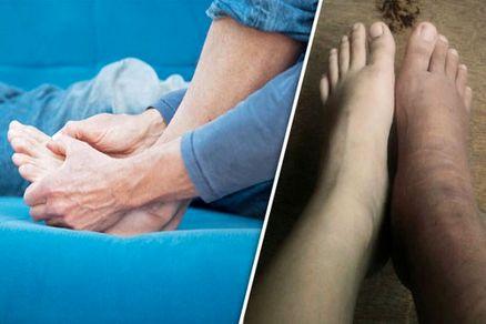 تورم مچ پا نشانهای هشدار دهنده از وجود این بیماری