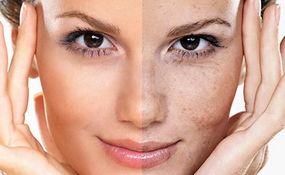 لک های پوستی را جدی بگیرید + فیلم