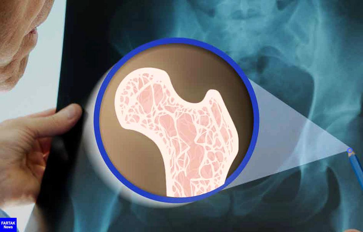 پوکی استخوان را با این راهکارهای ساده درمان کنید