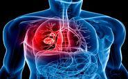 سرطان ریه؛ علت، علائم و راه های درمان