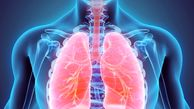 عوامل و راههای درمان سرطان ریه