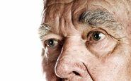 ۵ نکته درباره آلزایمر که از آن بی خبریم