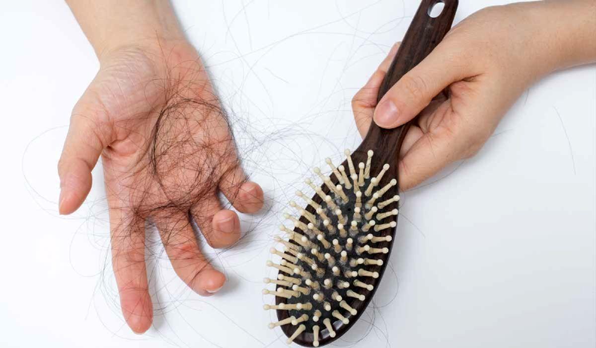۷ ماده غذایی موثر در رشد مجدد موها