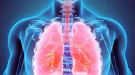 علائمی در ریهها که نگران کننده است