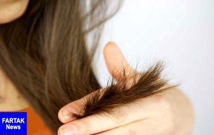 شناسایی ارتباط سفیدشدن موها و فعالیت سیستم ایمنی بدن
