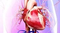 رابطه آلودگی اندک هوا با خطر بزرگ شدن قلب