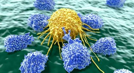 """چگونگی سوختگیری """"سلولهای کشنده"""" سلولهای سرطانی"""