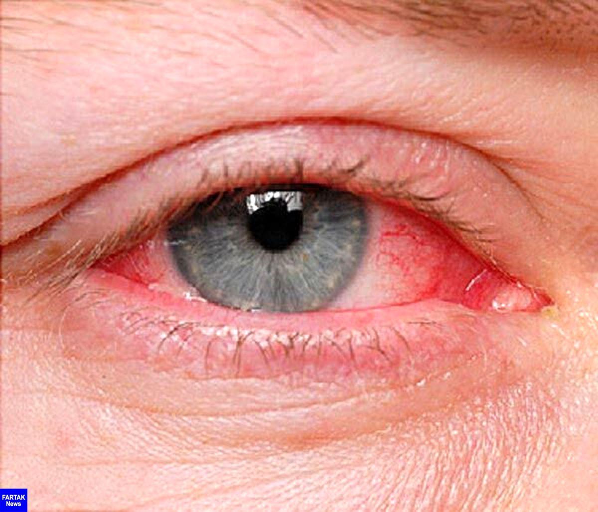 عفونتهای ویروسی، شایعترین بیماری چشم در فصل گرما