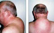 ترسناکترین نشانه ابتلا به سرطان تیروئید را بشناسید!