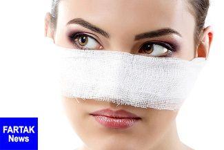 کارهایی که هرگز نباید بعد از عمل بینی انجام دهید!
